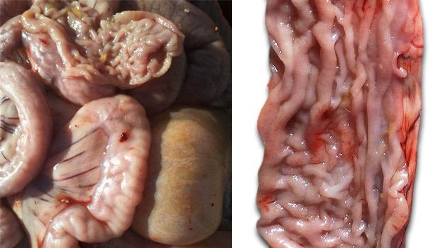 Engrosamiento de la mucosa en parte distal del intestino delgado