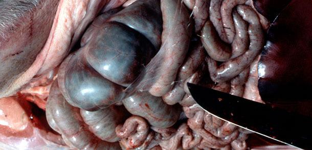 Fibrina peritoneale tipiche da App forma acuta