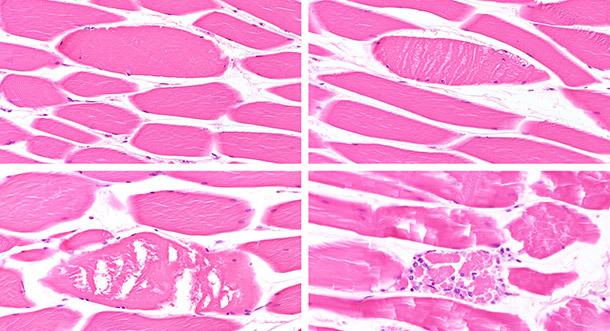 Diferentes etapas de degeneración/necrosis de miofibras