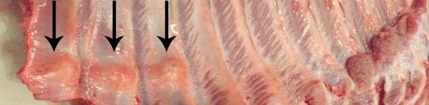 Fratture multiple distali delle costole (freccie)