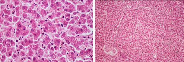 Degeneración hidrópica difusa hepática y desorganización hepática difusa