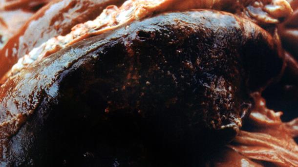 Pleuriti fibrinosa  in una polmonite emorragica tipica di APP acuta