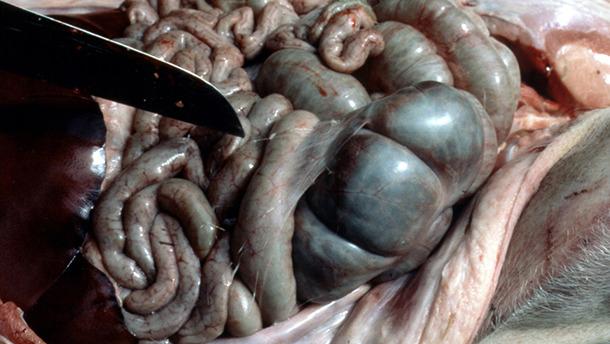 Tracce di fibrina nel peritoneo