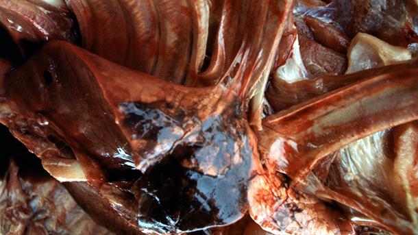 Pleurite fibrinosa organizzata dopo esposizione a Acpp