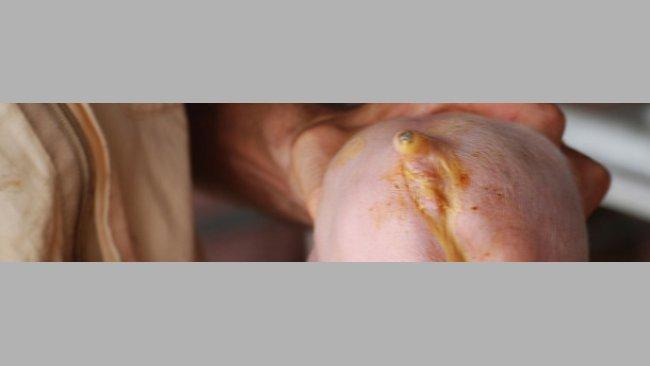 Diarrea neonatall causata da E. Coli (Cortesia Dr Hector Patullo)