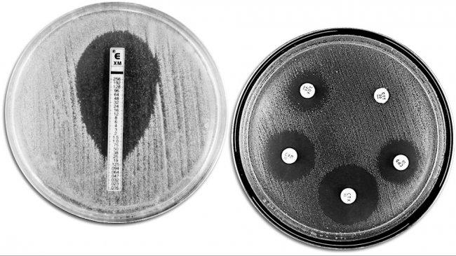 Tecniche classiche di valutazione della resistenza agli antibiotici. A sinistra viene mostrato un E-TEST che permette di misurare la concentrazione minima di antibiotico che impedisce la crescita batterica. A destra viene mostrato un antibiogramma nel quale si osservano diversi aloni di inibizione di crescita da parte degli antibiotici.