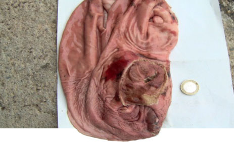 Ulcera gastrica emorragica acuta