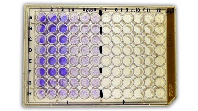 Figura 2b: Sieroneutralizzazione(SN) per la rilevazione degli anticorpi vs il virus della diarrea virale bovina (BVDv) nel siero.