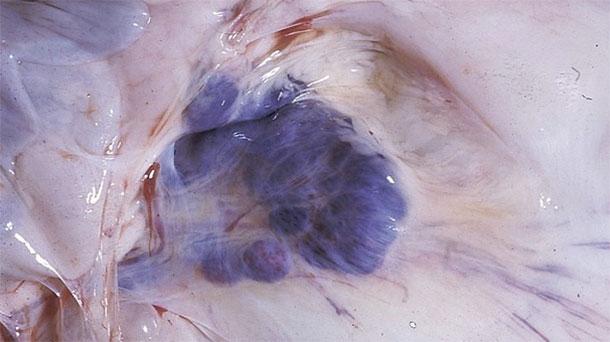 Fotografia 6. Risultati della necroscopia nei suini colpiti. Notare le emorragie dei gangli linfatici mesenterici