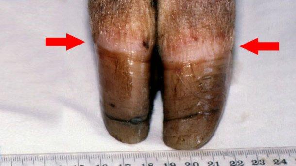 Figura 1. Banda coronaria- cercine coronario (freccia). Si noti la crescita irregolare e la fessura dell'unghiello.
