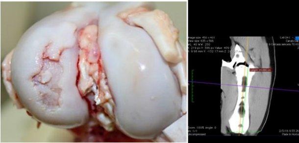 Visione macroscopica dell'articolazione del ginocchio con una grave lesione da osteocondrosi nel condilo laterale del femore.