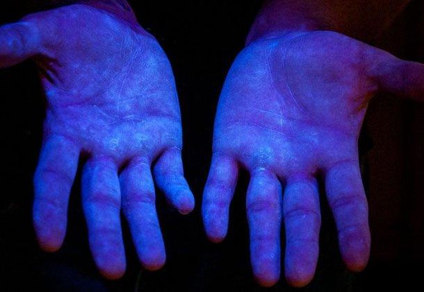 Foto 6. Materiale fluorescente a luce ultravioletta (UV) per dimostrare che il prodotto copre la totalità delle mani. Fontewww.glogerm.com